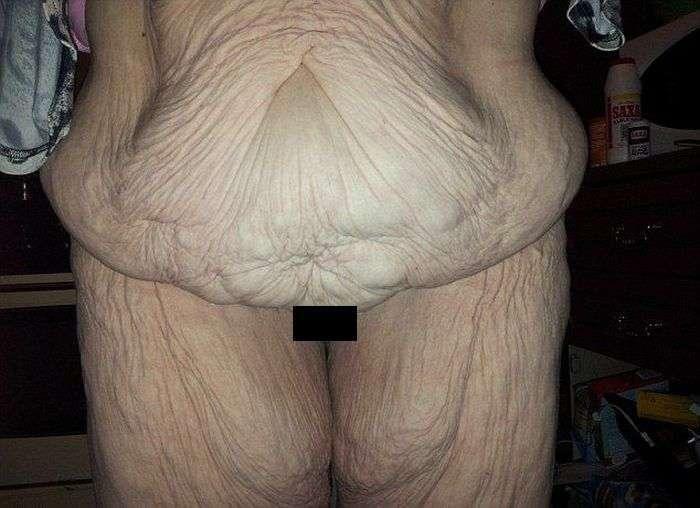 Операція з видалення зайвої шкіри: до і після (4 фото)
