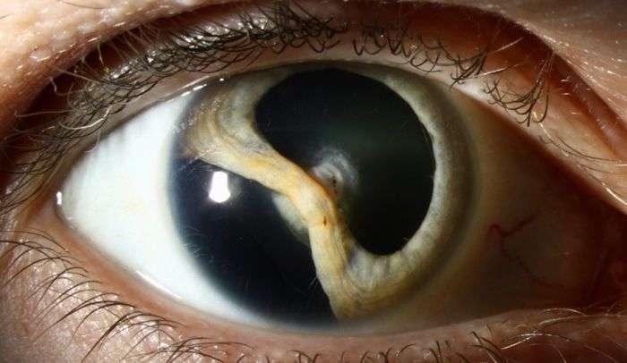 Захворювання колобома і його наслідки (12 фото)