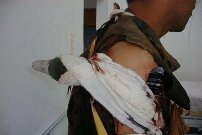 Мінометна міна застрягла в плечі військовослужбовця (3 фото)