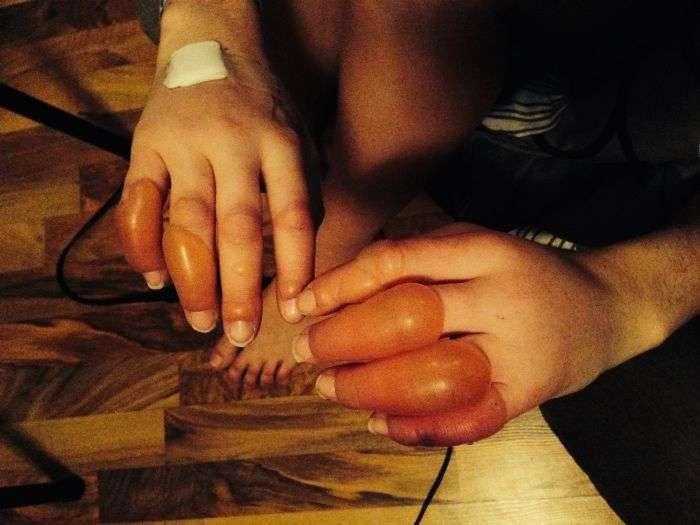 Пяна вечірка закінчилася обмороженням пальців (7 фото)