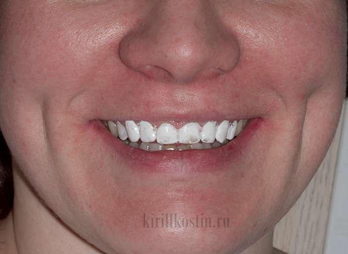 Чого варто чекати від засобів моментального відбілювання зубів (10 фото)