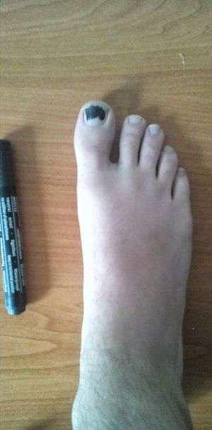 Рішення проблеми з дірками в шкарпетках (3 фото)